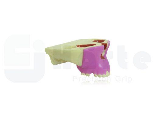 Maxila Com Gengiva Periodontal e Recessão - 4051G