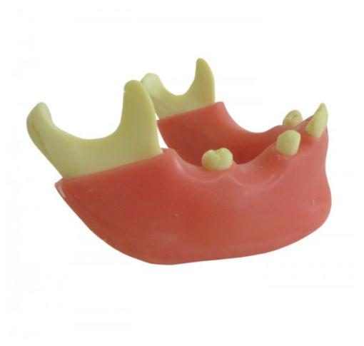 4012 G - Mandíbula com Alguns Dentes e Gengiva