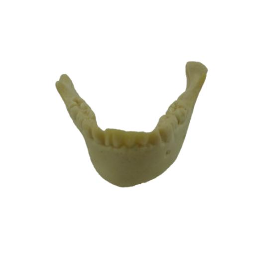 4013 - 2 - Mandíbula Infantil Com Todos Os Dentes e Deformidade