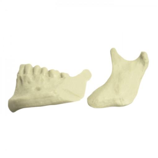 4029 - 1/2 Mandíbula Esquerda Com Corte De Osteotomia Sagital