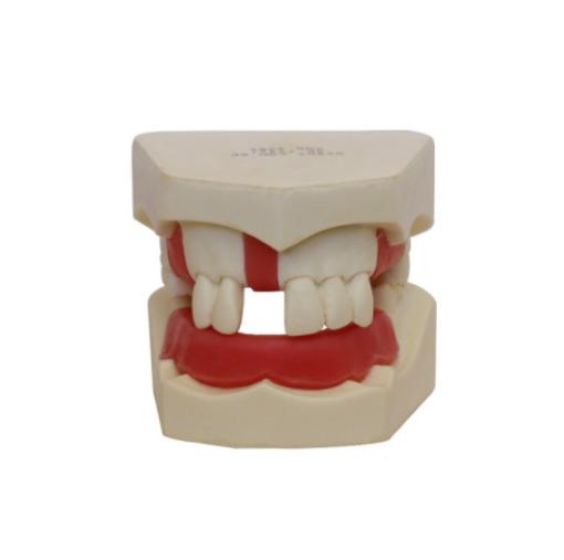 4200 - Manequim Básico Com Alguns Dentes e Gengiva Parcial