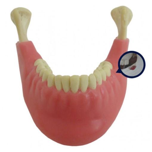 4402 G-02 - Mandíbula Com Todos Os Dentes e Gengiva + 3º Molar