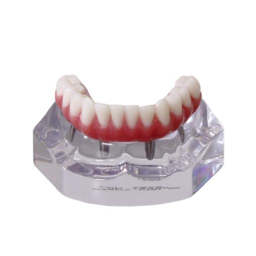 9568 – Mandíbula Acrílica Com Protocolo e 4 Implantes