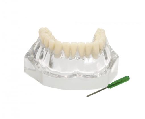 9570 – Mandíbula Acrílica Com Dentes e 3 Implantes