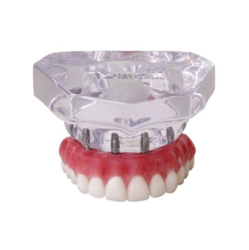9571 – Maxila Acrílica Com 6 Implantes e Protocolo
